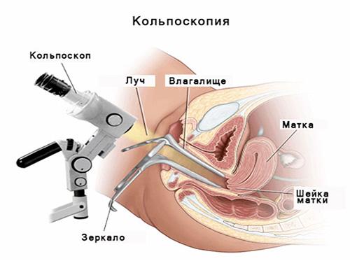 Кальпоскопия Занятие Сексом