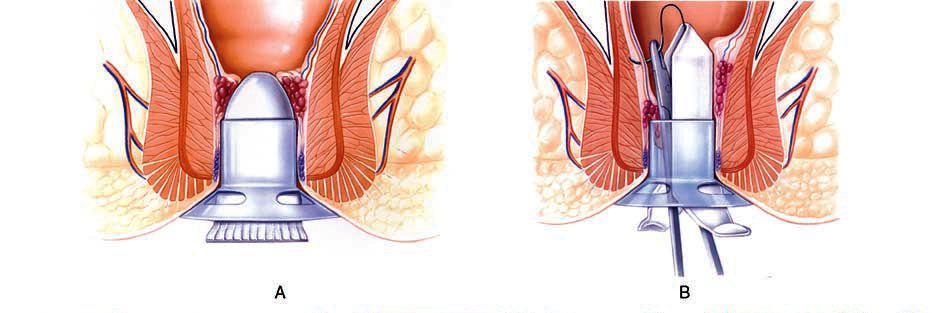 Связано ли простатит и геморрой комплексное лечение травами простатита